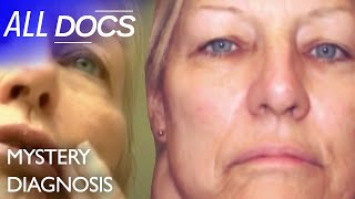 The Woman with the Giant Lump on Her Neck: Paraganglioma   Medical Documentary   Reel Truth