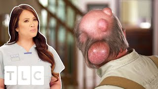 Man Has Water Balloon Ticking Time Bomb On The Back Of Head | Dr. Pimple Popper