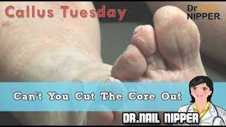 Can't You Cut The Core (Corn) #29 - Dr Nail Nipper Presents Callus Tuesday