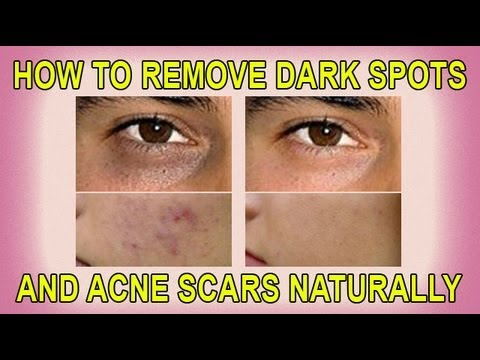 Best Products To Get Rid Of Age Spots Naturally