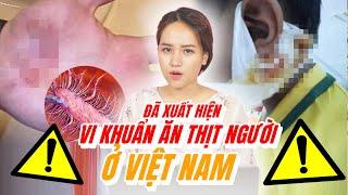 CẢNH BÁO : Vi khuẩn ăn thịt người bắt đầu bùng phát ở Việt Nam !