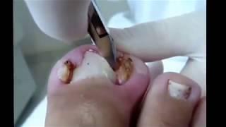 Ca lấy khoé chân khó thở nhất thế giới thu hút 5 triệu lượt xem