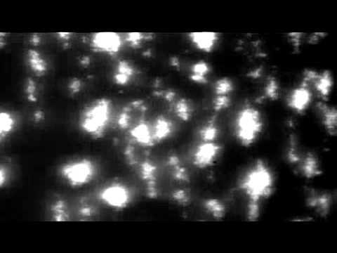 Platelet adhesion & aggregation