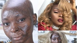 Extreme Makeover Transformation | Shalom Blac