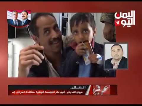 قناة اليمن اليوم - عن قرب 06-05-2019