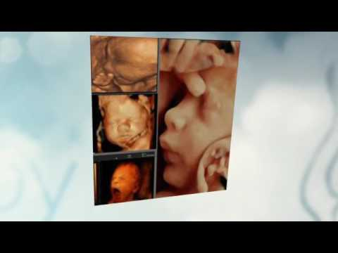 Amazing ultrasound scan http://www.scan4d.co.uk/ call 08000075076