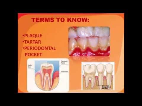 Heart Disease and Dental Health