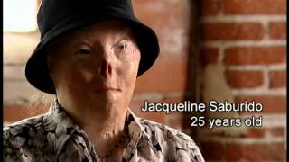 Dangers of Underage Drinking and Driving: Jacqui's Story