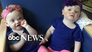 Family shares update on formerly conjoined twins following separation surgery