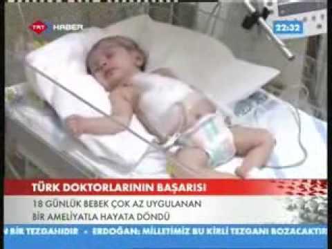 18 Günlük Bebek çok az uygulanan bir ameliyatla hayata döndü