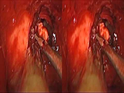 3-D Endoscopic Transsphnoidal Pituitary Surgery: 4 Unique Cases of Craniopharyngioma