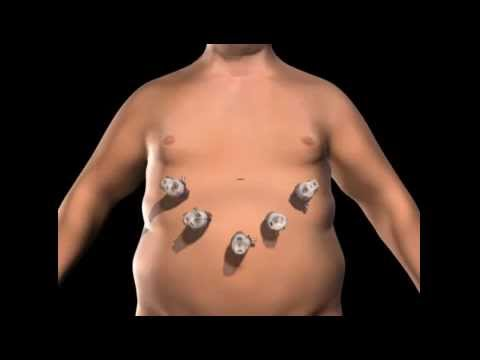 Weight loss surgery (Bariatric surgery) - Gastric sleeve method