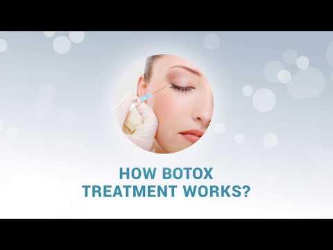How Botox Treatment Works