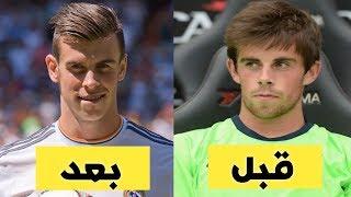 شاهد 12 لاعب كرة القدم قبل وبعد اجراء عمليات التجميل..!!