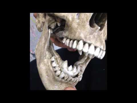 Wynonna Earp Episode 7 Skull Jaw Test