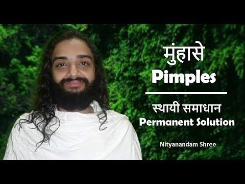 Pimples ''Permanent Solution'' Ayurvedic Remedy  मुंहासे ''स्थायी समाधान'' आयुर्वेद समाधान'