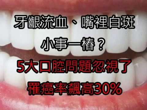 牙齦流血、嘴裡白斑小事一樁? 5大口腔問題忽視了,罹癌率飆高30%!