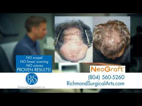 Hair Transplant In Virginia - Dr. Gregory T. Lynam's Clininc