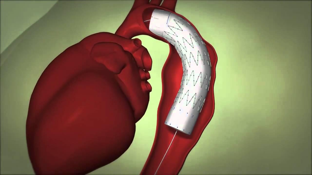 Aneurisma inflamatório da aorta abdominal: revisão