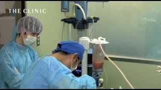 脂肪の採取に適したベイザー脂肪吸引の陰圧
