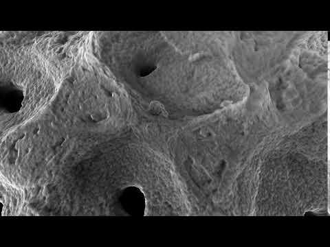 Symbios biphasisches Knochenersatzmaterial 2/2
