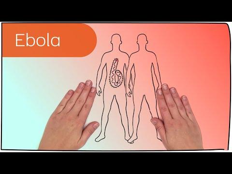 Video: Symptome des Ebola Virus
