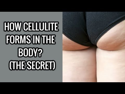 The Untold Secret - How Does Cellulite Forms In The Body