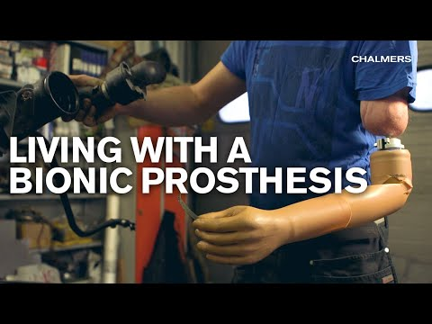 Living with a bionic prosthesis