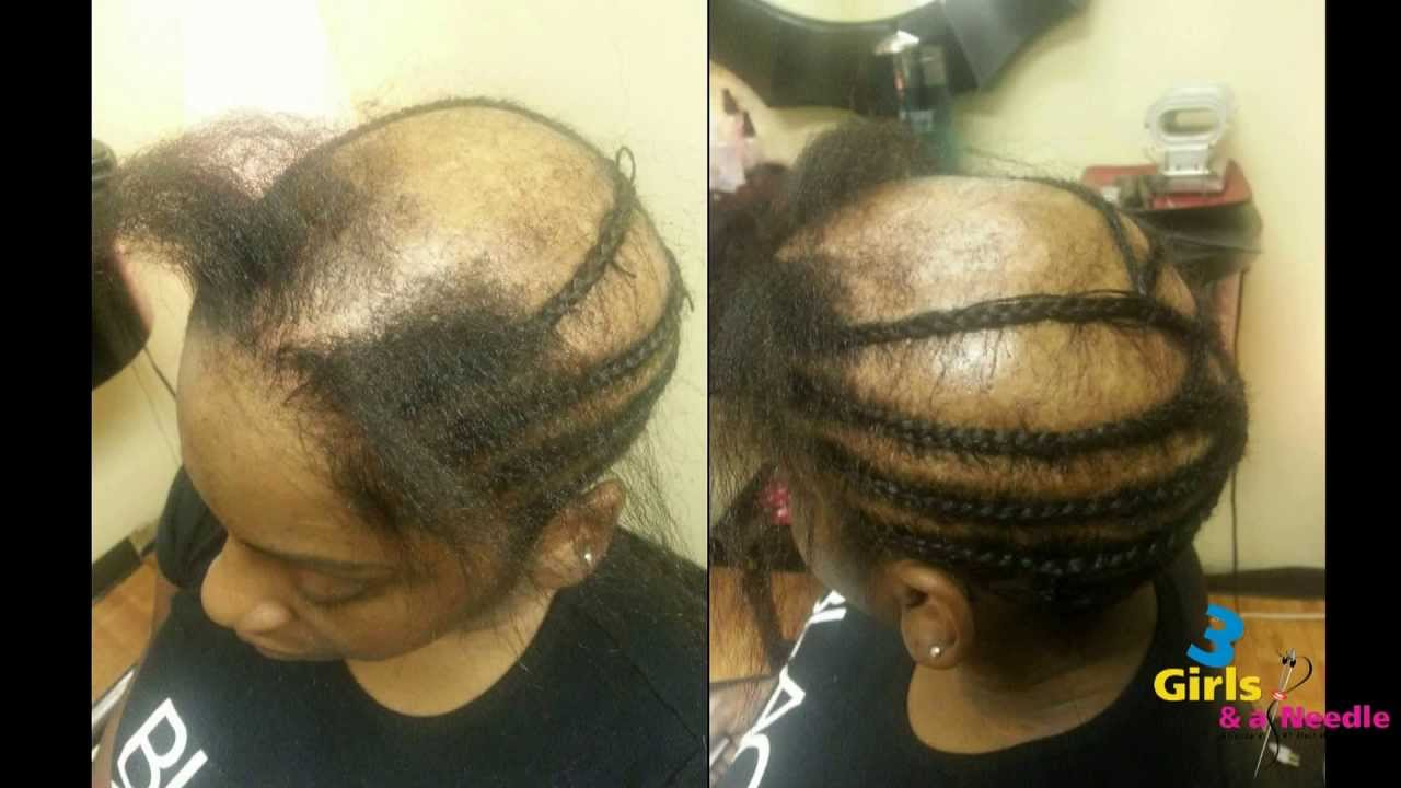 Alopecia Sew In Done By 3 Girls And A Needle Youtube