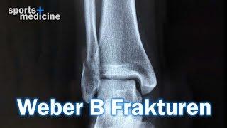 Funktionelle Behandlung bei Weber B-Fraktur?