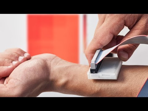 Device that detects skin cancer wins James Dyson Award 2017