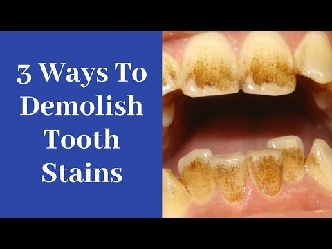3 unusual hacks to Dramatically Remove Tooth Stains