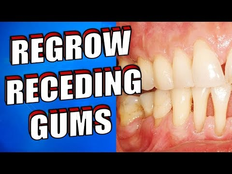Receding Gums Treatment! Works Fast!
