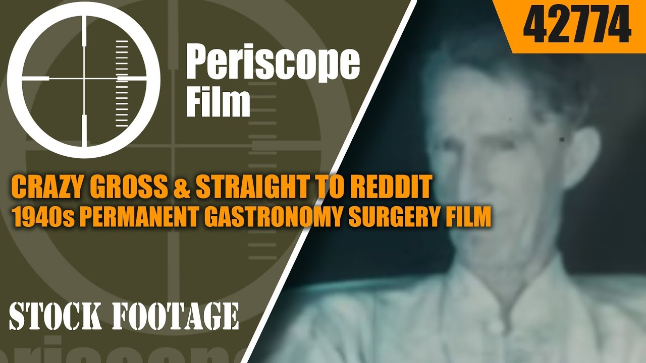 CRAZY GROSS & STRAIGHT TO REDDIT -- INCREDIBLE 1940s PERMANENT GASTRONOMY SURGERY FILM 42774