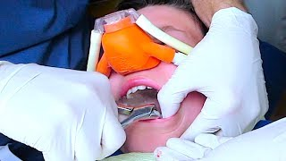 WARNING GRAPHIC DENTAL IMAGES!