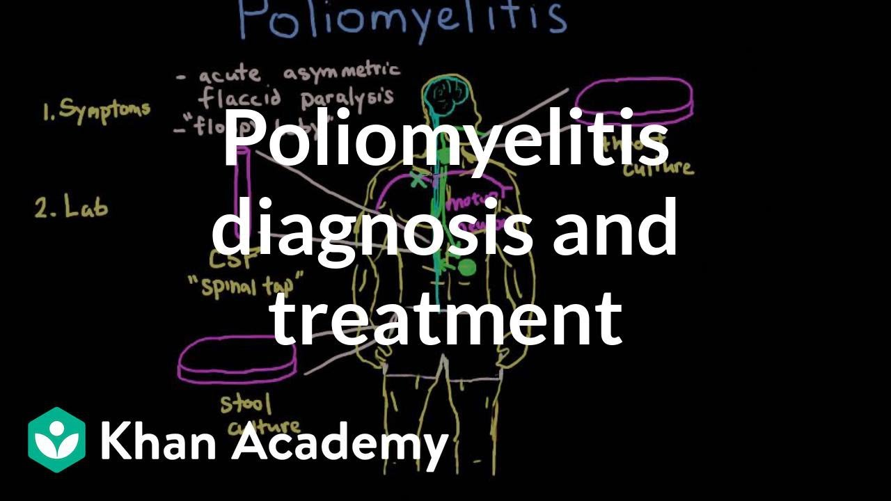 Poliomyelitis diagnosis and treatment | Infectious diseases | NCLEX-RN | Khan Academy