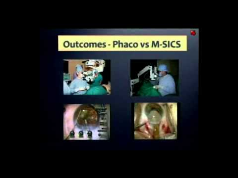 The Greatest Challenge in Cataract Surgery (part 2)
