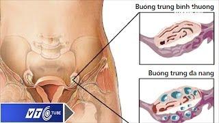Thụ thai dù đa nang buồng trứng | VTC