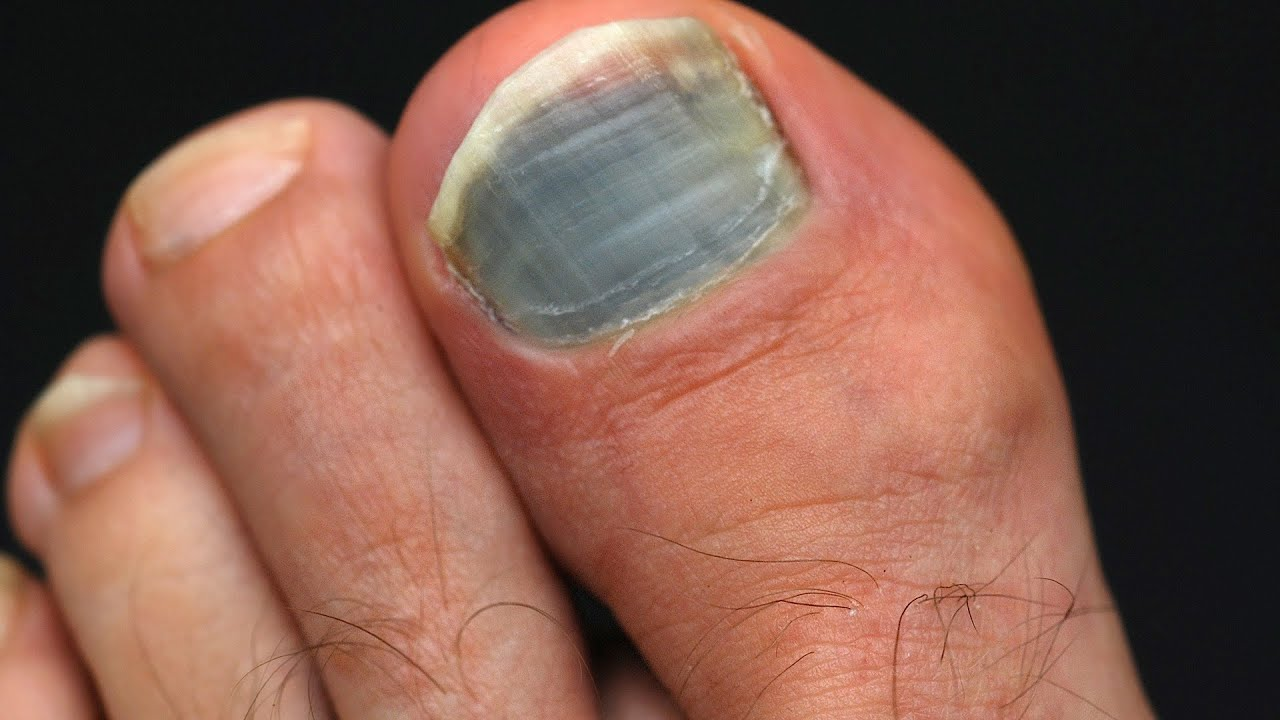 How To Prevent Amp Treat Black Toenail Foot Care Youtube