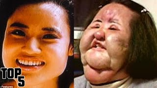Top 5 Plastic Surgeries Gone Wrong
