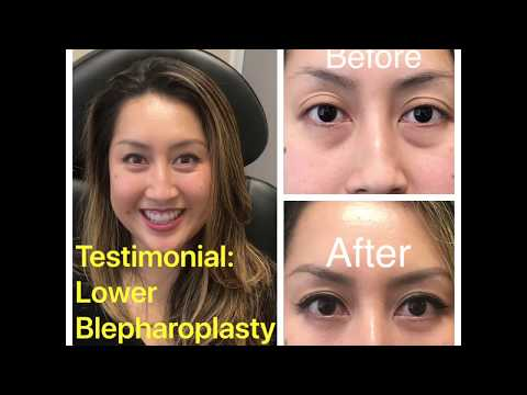 Asian lower blepharoplasty