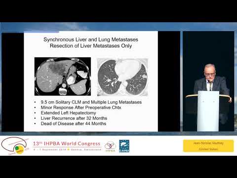 SYM05.4 New Frontiers and Treatment of Colorectal Liver Metastases