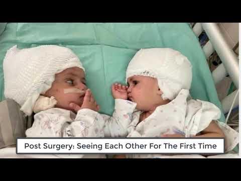 Surgical Separation of 1 y.o. Occipital Partial Craniopagus Twins