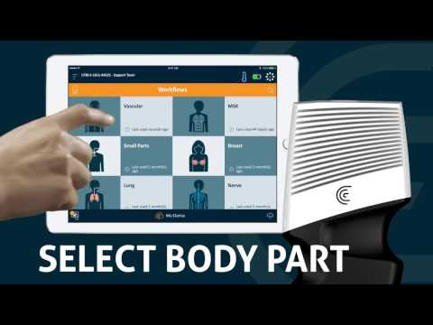 With point and shoot capabilities, medical professionals need only to launch the app, select the scanner, select a body part and are ready to begin. From there they have the option to zoom, freeze, and save.