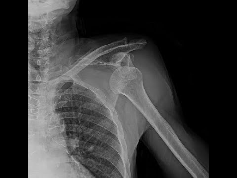 How I fixed the dislocated shoulder in 20 seconds.
