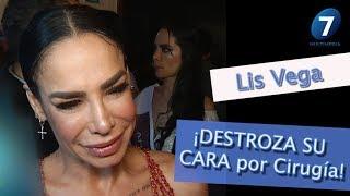 Lis Vega ¡DESTROZA SU CARA por Cirugía! / ¡Suéltalo Aquí! Con Angélica Palacios