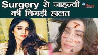 Surgery के बाद श्रीदेवी की बेटी जाह्नवी का हुआ ये हाल, जवानी में भयानक रूप आया सामने | Shining Star