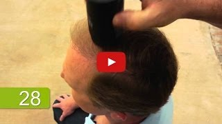 Thinning Hair Solution In Seconds