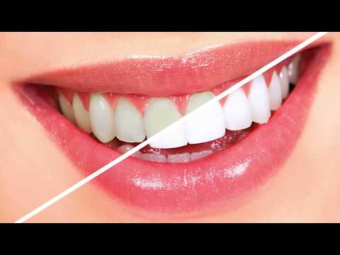 Top 3 Teeth Whitening Home Treatments For Guaranteed Results