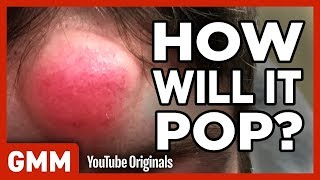 How Will This Pimple Pop? (GAME) ft. Dr. Pimple Popper